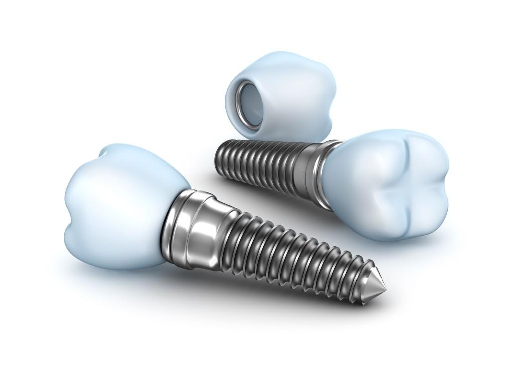 Demed implanty Wołomin implanty zębów korona na implancie