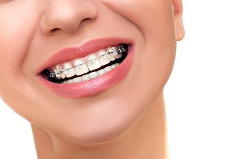 Demed ortodonta Wolomin