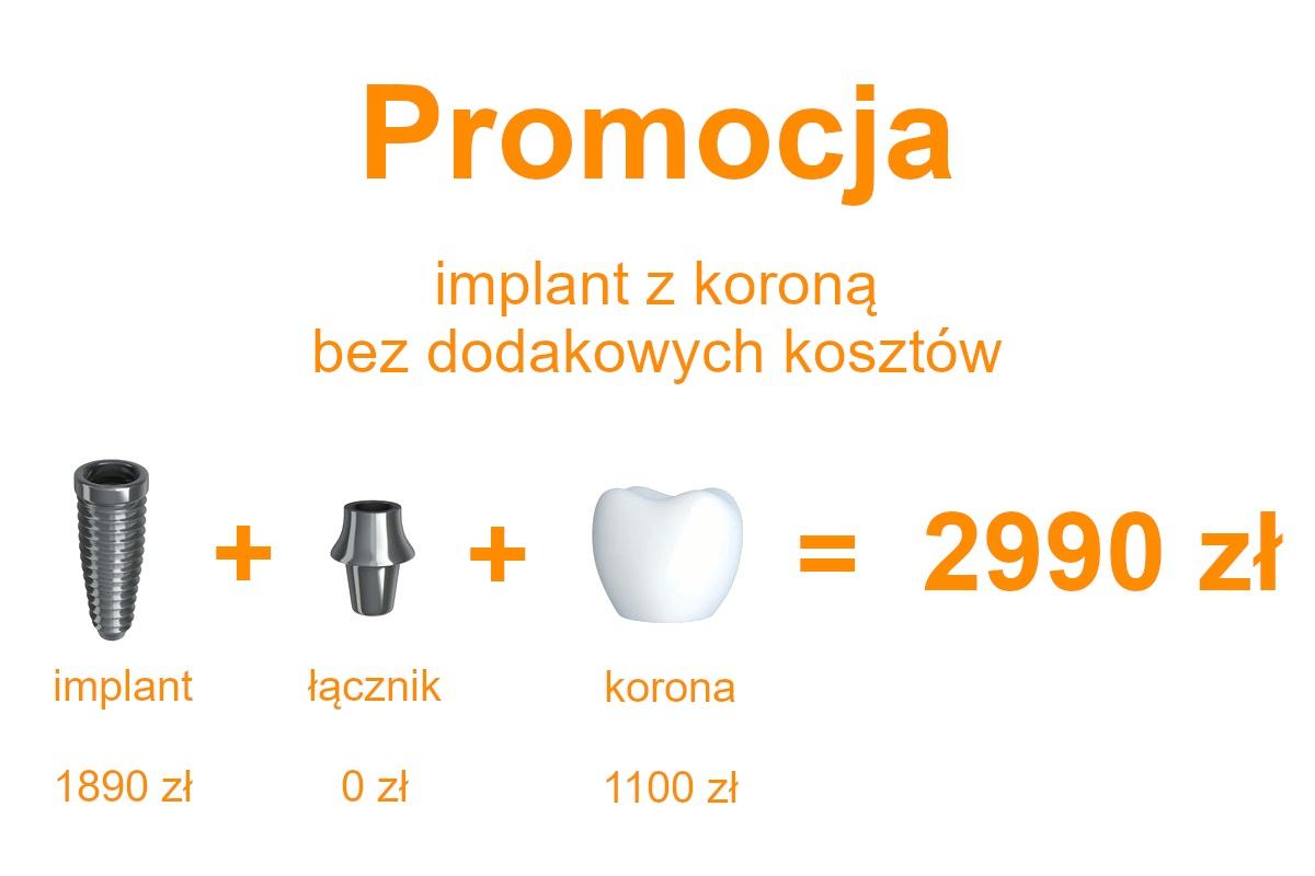 Implant z Koroną 2990 zł Promocja Wołomin